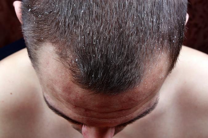Gàu ngứa da đầu