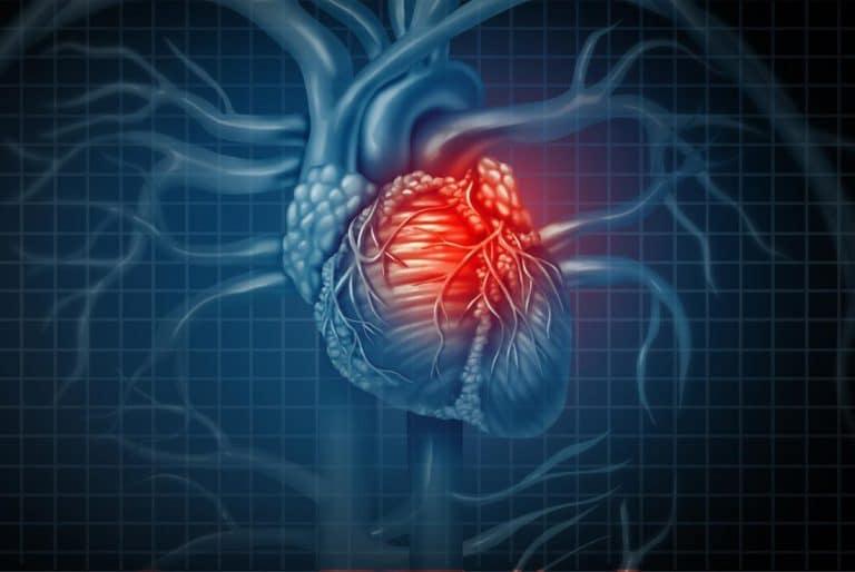 Đau tim gây tê cánh tay