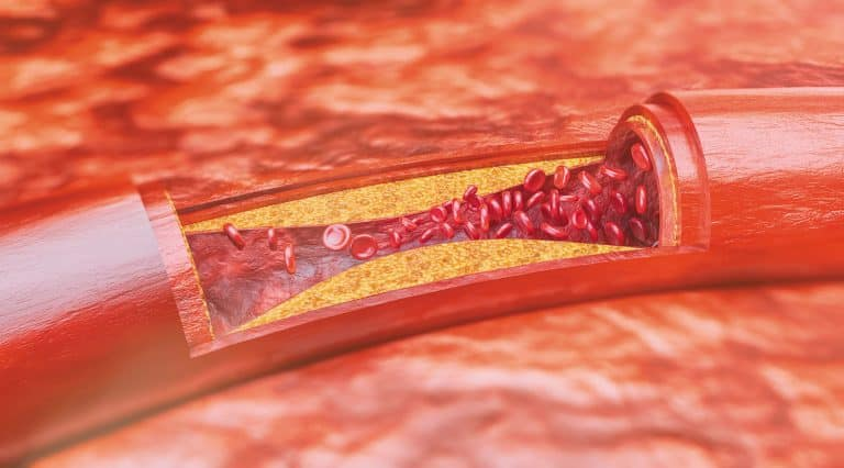 Xơ vữa động mạch gây tê cánh tay